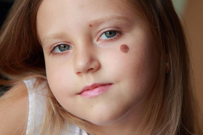 Гемангиомы и родинки на теле ребенка: что с ними делать