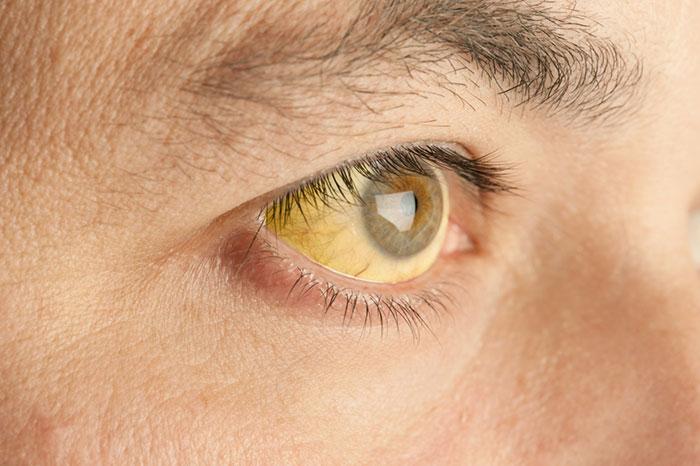 Прививка от гепатита А (от желтухи)