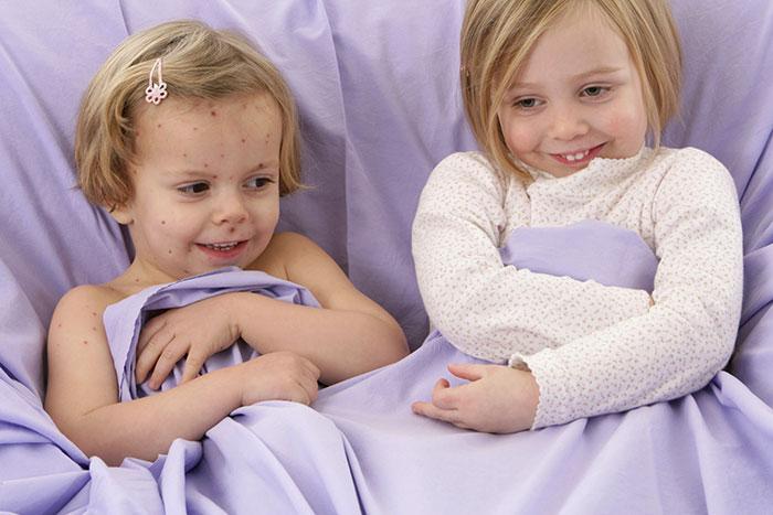 Ветрянка у детей: симптомы, течение, лечение