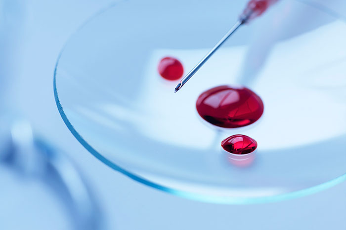 Blood test: in what cases is it prescribed by pediatricians?