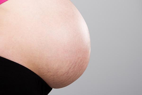 Estrías durante el embarazo